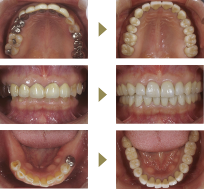 Case4 咬合治療(インプラント+補綴) (治療期間7ヶ月半)のイメージ