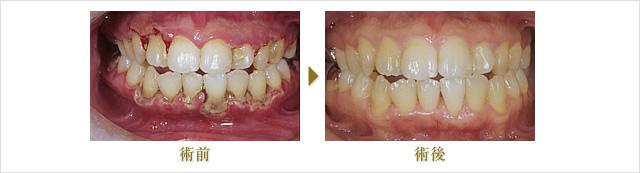 Case2(期間6ヶ月)のイメージ