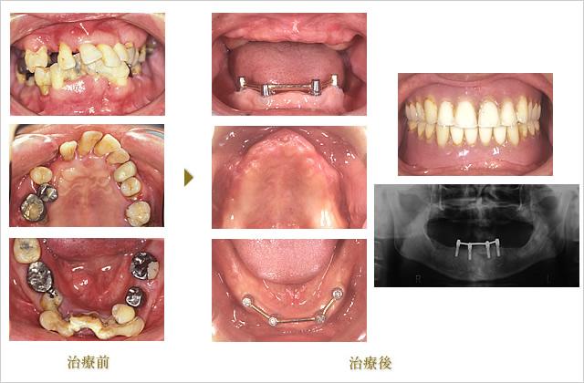 症例 1のイメージ