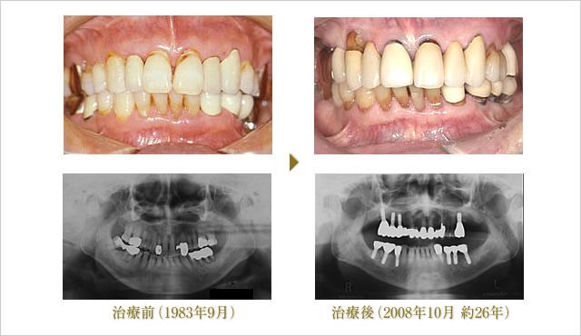 症例 2のイメージ