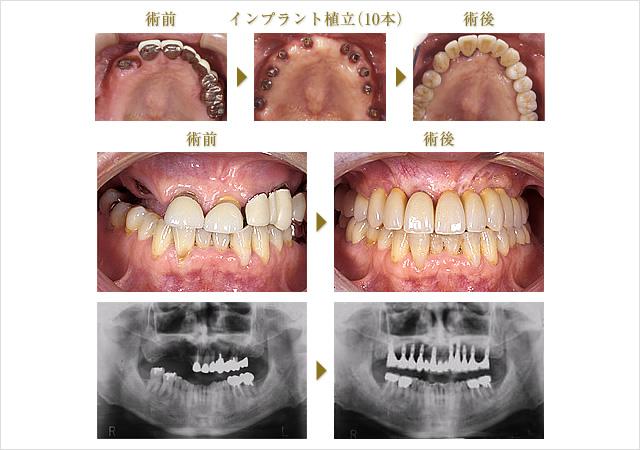 症例 3のイメージ