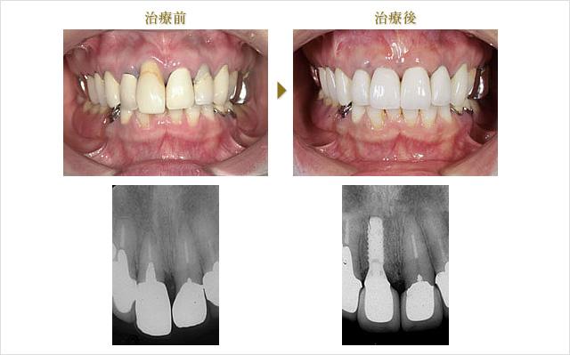 症例 4のイメージ