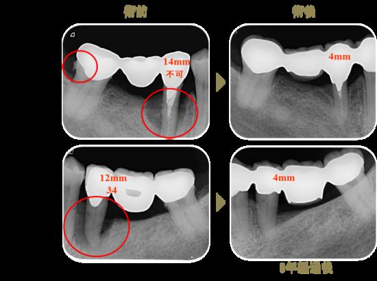エムドゲイン(歯周組織再生誘導法)